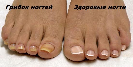 Лечение кутикулы ногтей в домашних условиях thumbnail