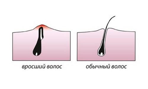 Уход за кожей до и после депиляции