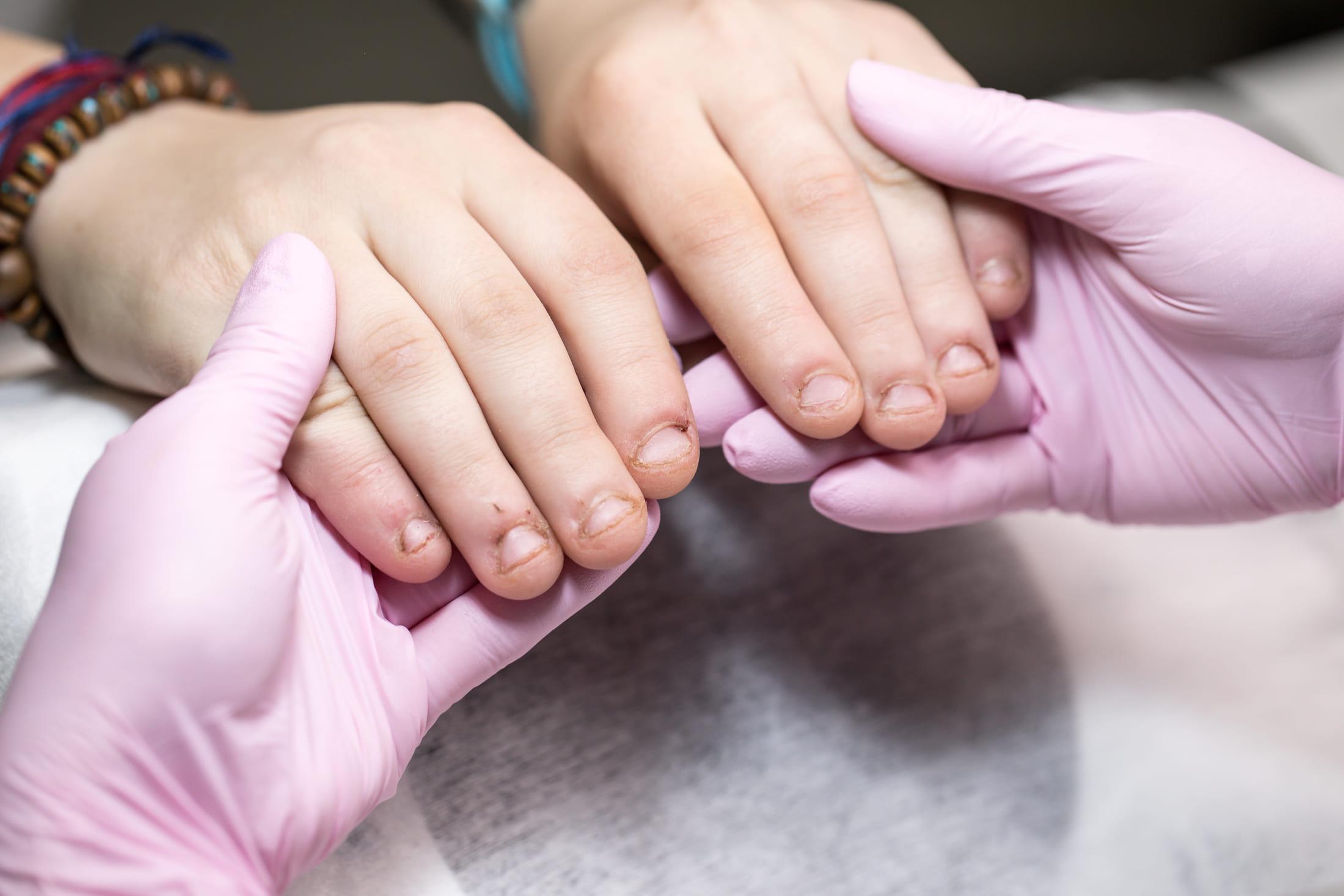 Наращивание на сложных ногтях